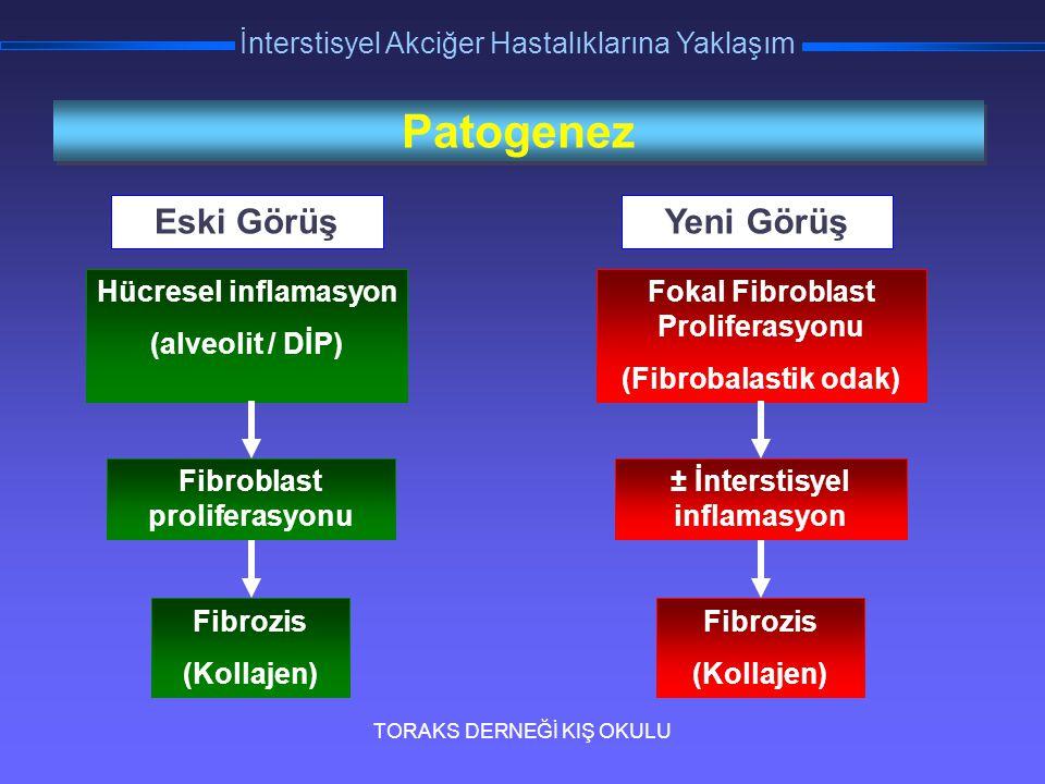 TORAKS DERNEĞİ KIŞ OKULU İnterstisyel Akciğer Hastalıklarına Yaklaşım Patogenez Eski Görüş Hücresel inflamasyon (alveolit / DİP) Fibroblast proliferas