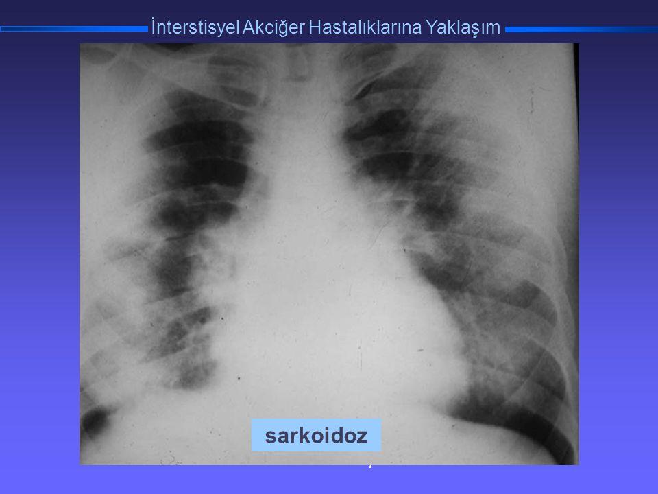TORAKS DERNEĞİ KIŞ OKULU İnterstisyel Akciğer Hastalıklarına Yaklaşım sarkoidoz
