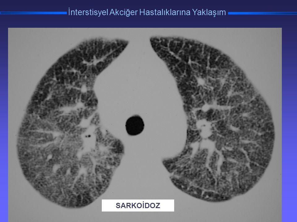 TORAKS DERNEĞİ KIŞ OKULU İnterstisyel Akciğer Hastalıklarına Yaklaşım SARKOİDOZ