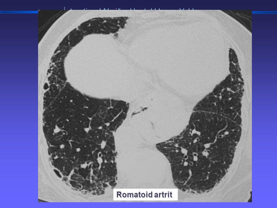 TORAKS DERNEĞİ KIŞ OKULU İnterstisyel Akciğer Hastalıklarına Yaklaşım Romatoid artrit