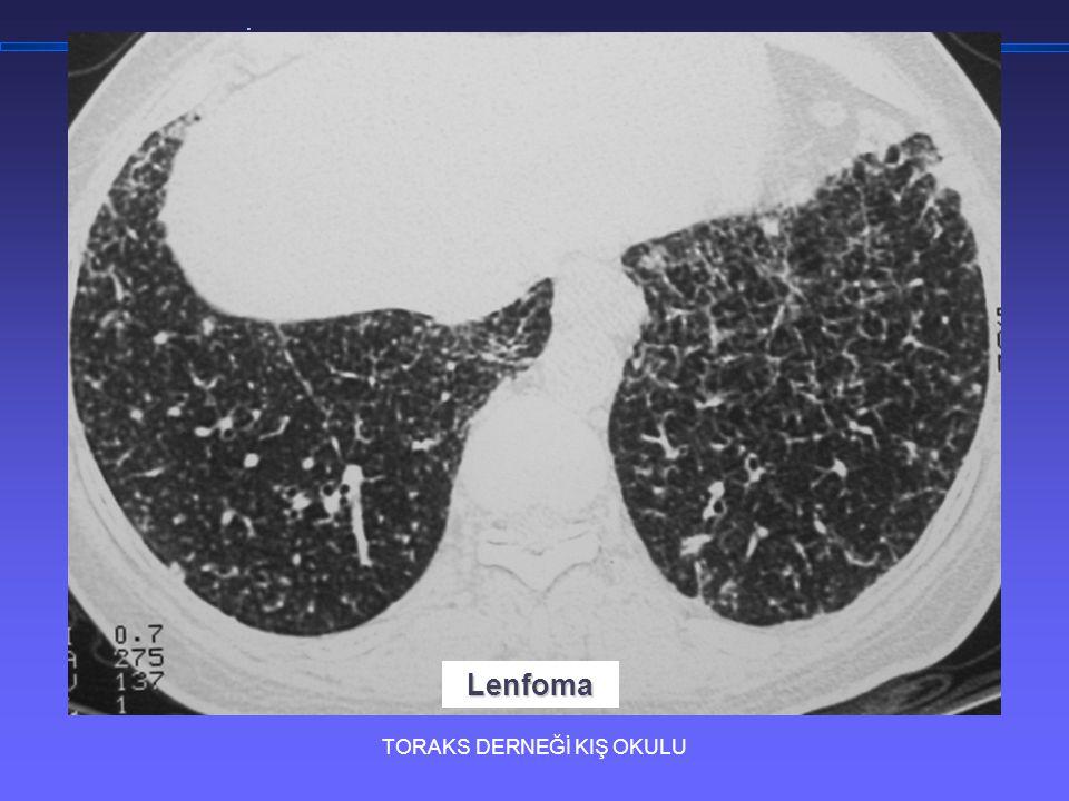 TORAKS DERNEĞİ KIŞ OKULU İnterstisyel Akciğer Hastalıklarına Yaklaşım Lenfoma