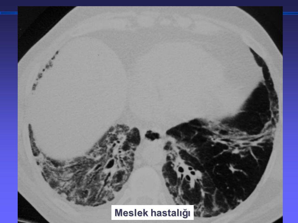 TORAKS DERNEĞİ KIŞ OKULU İnterstisyel Akciğer Hastalıklarına Yaklaşım Meslek hastalığı