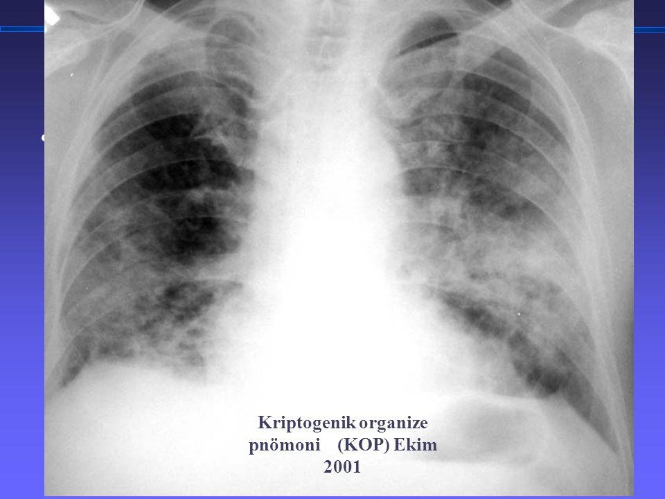 TORAKS DERNEĞİ KIŞ OKULU İnterstisyel Akciğer Hastalıklarına Yaklaşım 3 Kriptogenik organize pnömoni (KOP) Ekim 2001