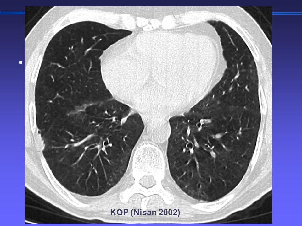 TORAKS DERNEĞİ KIŞ OKULU İnterstisyel Akciğer Hastalıklarına Yaklaşım 3 KOP (Nisan 2002)