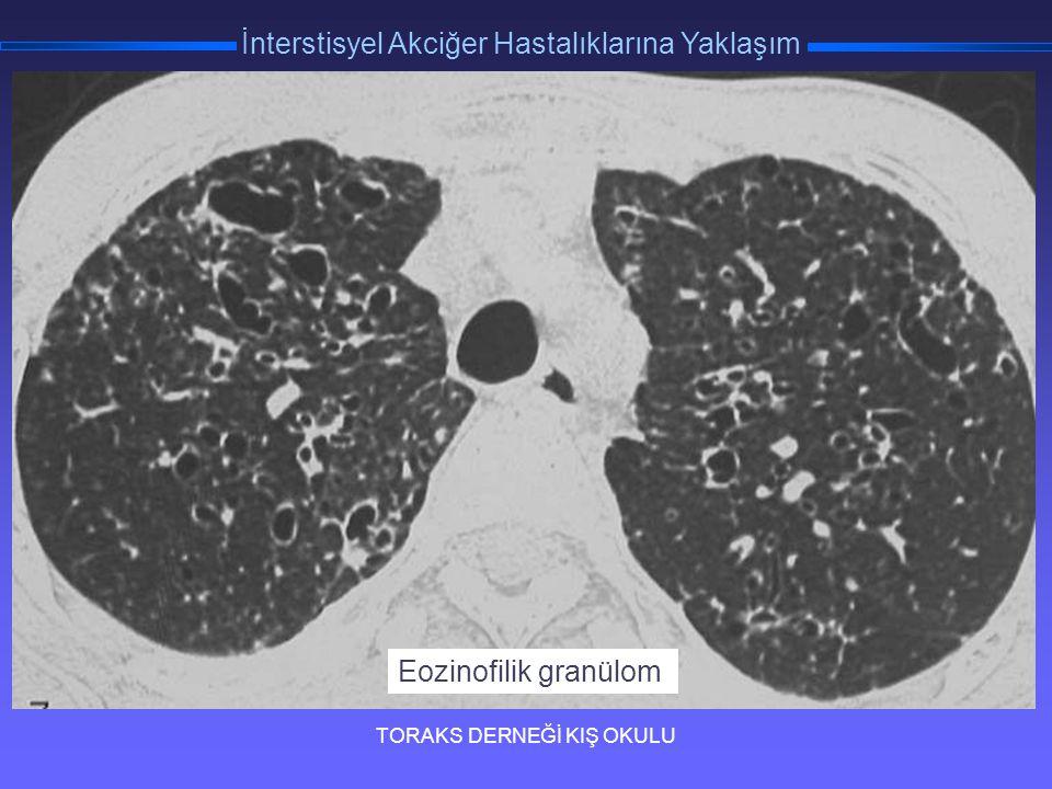 TORAKS DERNEĞİ KIŞ OKULU İnterstisyel Akciğer Hastalıklarına Yaklaşım 3 Eozinofilik granülom