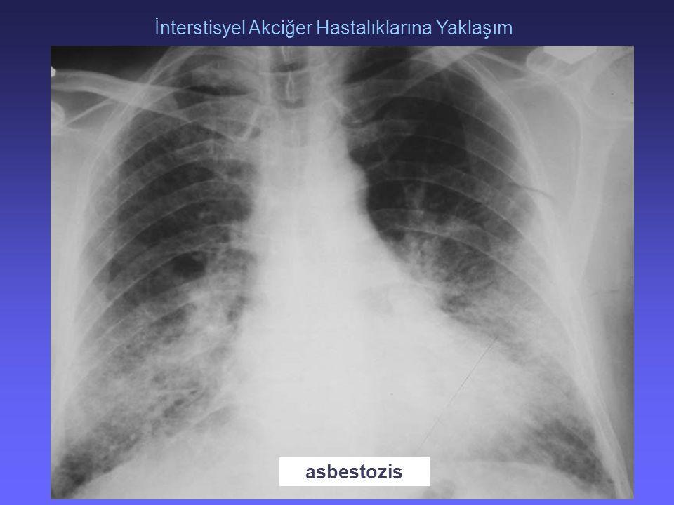 TORAKS DERNEĞİ KIŞ OKULU İnterstisyel Akciğer Hastalıklarına Yaklaşım 3 asbestozis