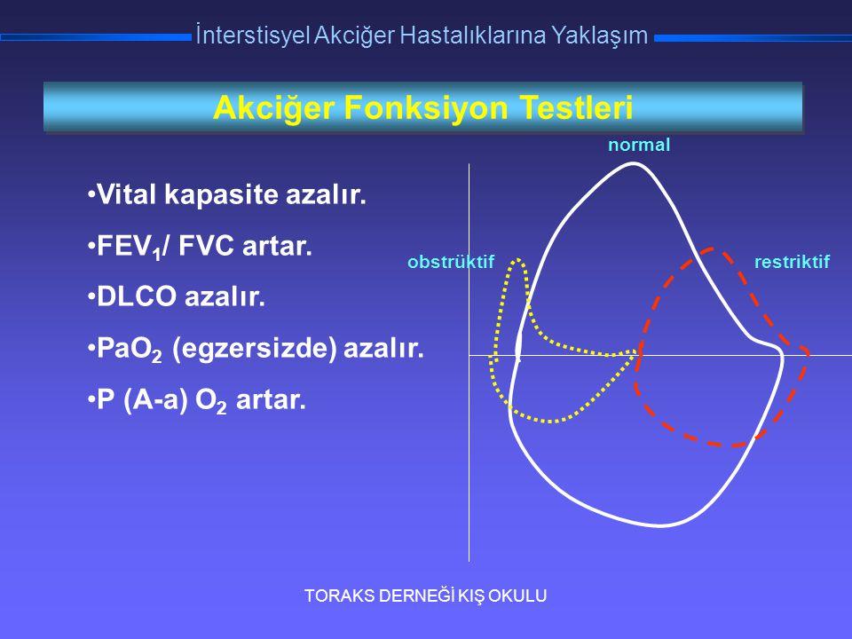 TORAKS DERNEĞİ KIŞ OKULU İnterstisyel Akciğer Hastalıklarına Yaklaşım Akciğer Fonksiyon Testleri Vital kapasite azalır. FEV 1 / FVC artar. DLCO azalır