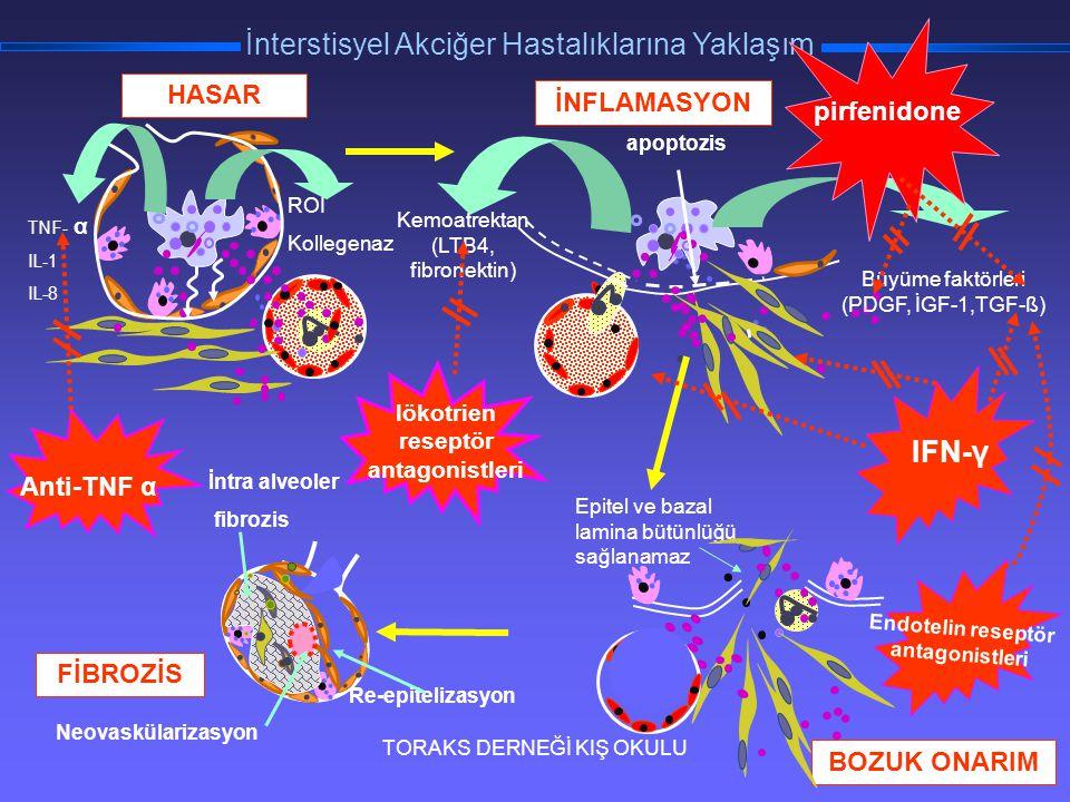 TORAKS DERNEĞİ KIŞ OKULU İnterstisyel Akciğer Hastalıklarına Yaklaşım TNF- α IL-1 IL-8 ROI Kollegenaz HASAR Re-epitelizasyon İntra alveoler fibrozis N