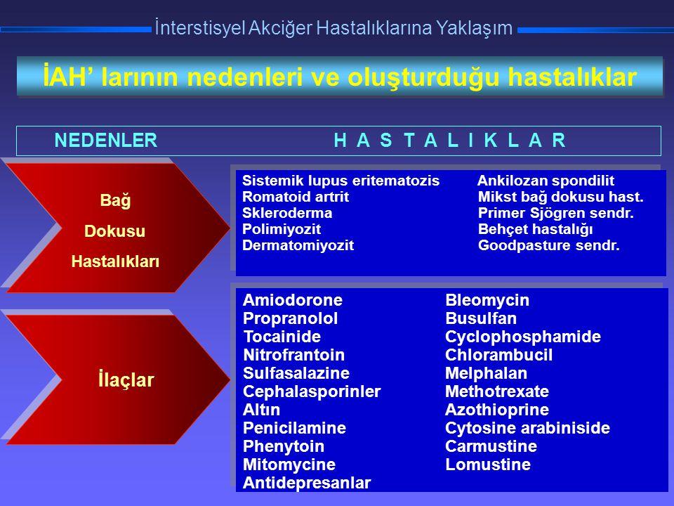 TORAKS DERNEĞİ KIŞ OKULU İnterstisyel Akciğer Hastalıklarına Yaklaşım Biyopsi Schwartz, 2003 Tanıda altın standart biyopsidir.