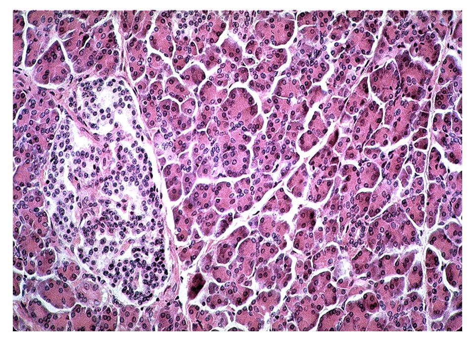 Tip-I DİABETES MELLİTUS Histopatoloji-4 B hücre kaybı ile birlikte giden adacık hasarı sonucu, adacık sayısı DM olmayan birisinin 1/3 ile 1/7 sine kadar azalır Adacıklarda nadiren amiloidoz görülebilir İHK incelemede B hücre kaybı görülürken; A ve D hücreleri ile PP hücre hasarı yok Büyük arterlerde ateroskleroz, küçük arterlerde diabetik mikroanjiyopati görülebilir.