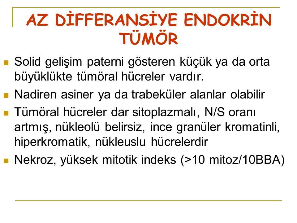 AZ DİFFERANSİYE ENDOKRİN TÜMÖR Solid gelişim paterni gösteren küçük ya da orta büyüklükte tümöral hücreler vardır.