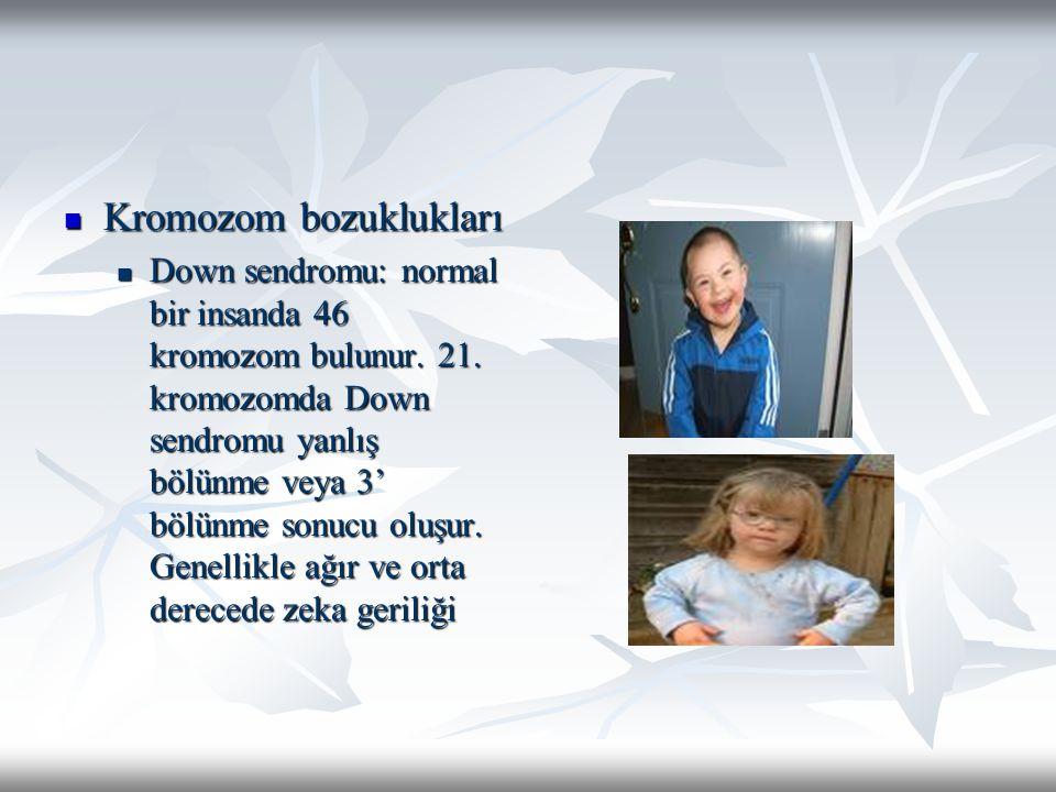 Kromozom bozuklukları Kromozom bozuklukları Down sendromu: normal bir insanda 46 kromozom bulunur. 21. kromozomda Down sendromu yanlış bölünme veya 3'