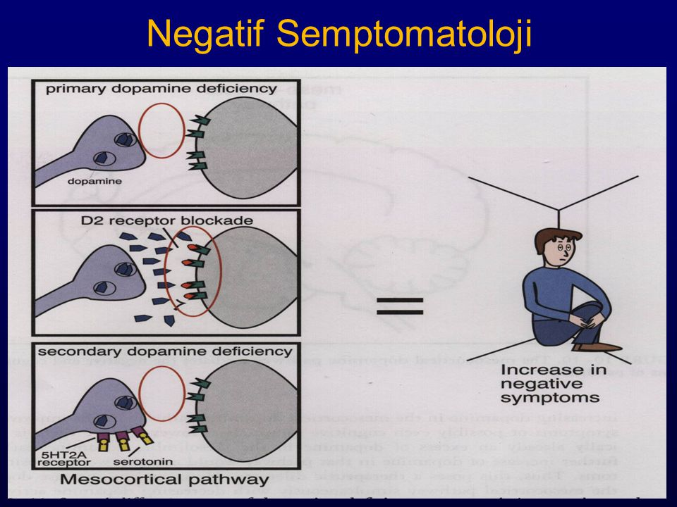 Negatif Semptomatoloji
