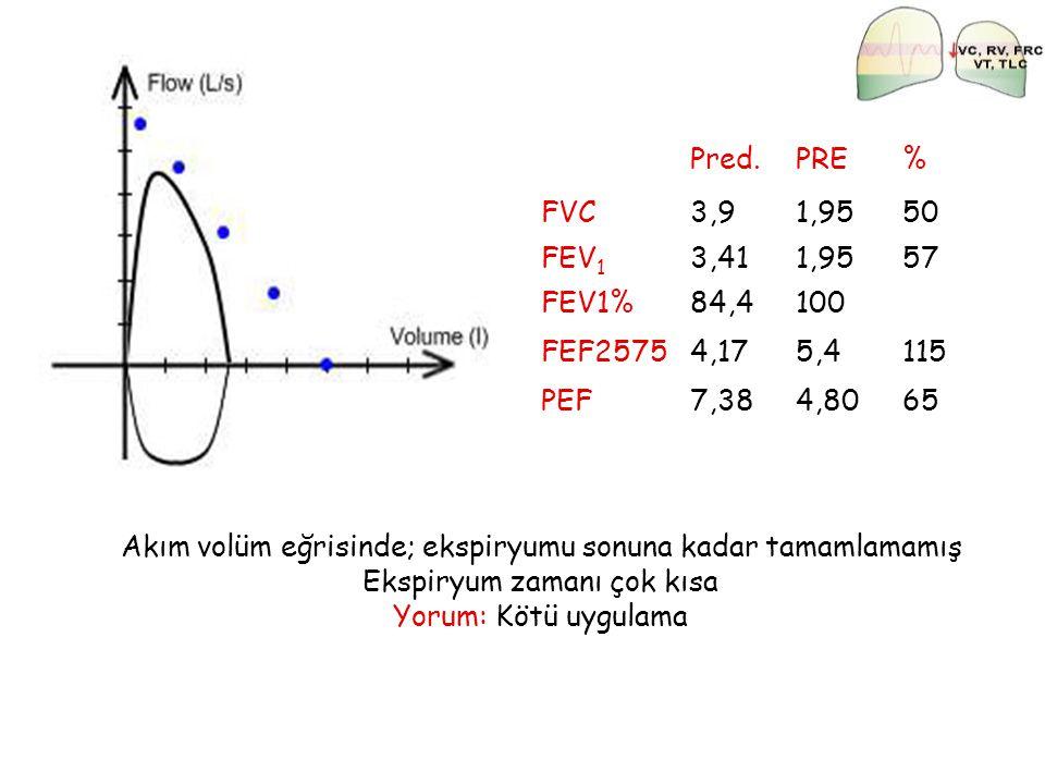 Pred.PRE% FVC3,91,9550 FEV 1 3,411,9557 FEV1%84,4100 FEF25754,175,4115 PEF7,384,8065 Akım volüm eğrisinde; ekspiryumu sonuna kadar tamamlamamış Ekspir
