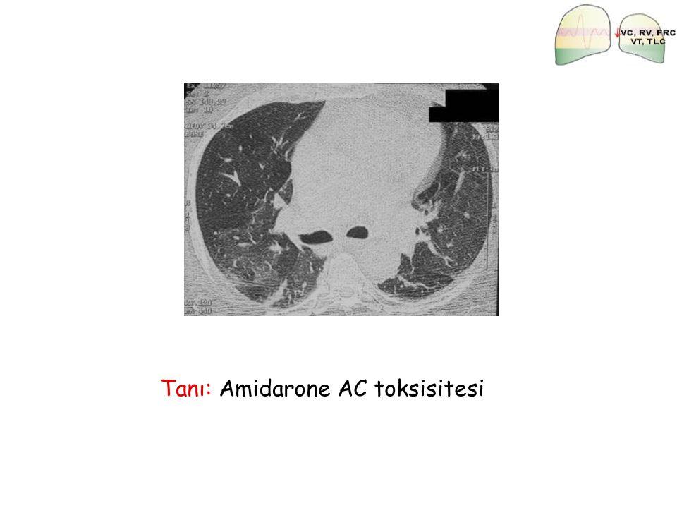 Tanı: Amidarone AC toksisitesi