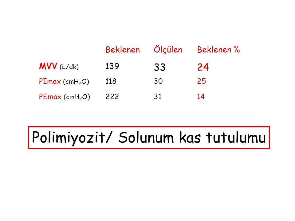 BeklenenÖlçülenBeklenen % MVV (L/dk) 139 3324 PImax (cmH 2 O) 1183025 PEmax (cmH 2 O )2223114 Polimiyozit/ Solunum kas tutulumu