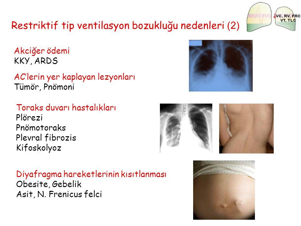 Restriktif tip ventilasyon bozukluğu nedenleri (2) Akciğer ödemi KKY, ARDS Toraks duvarı hastalıkları Plörezi Pnömotoraks Plevral fibrozis Kifoskolyoz