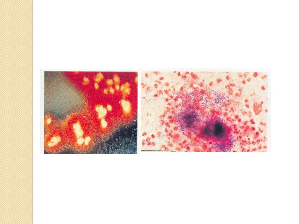 Tedavi Penisilin, aktinomikozda ilk seçilecek ilaçtır Ayrıca di ğ er beta laktamlar, makrolidler, tetrasiklin ve kloramfenikol de etkilidir