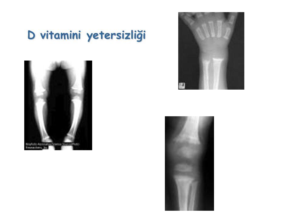 Küresel boyutta önemli sorunlar yaratan ve görülme sıklığı en yüksek olanları: Vitamin A, vitamin D, demir ve iyot yetersizlikleridir.