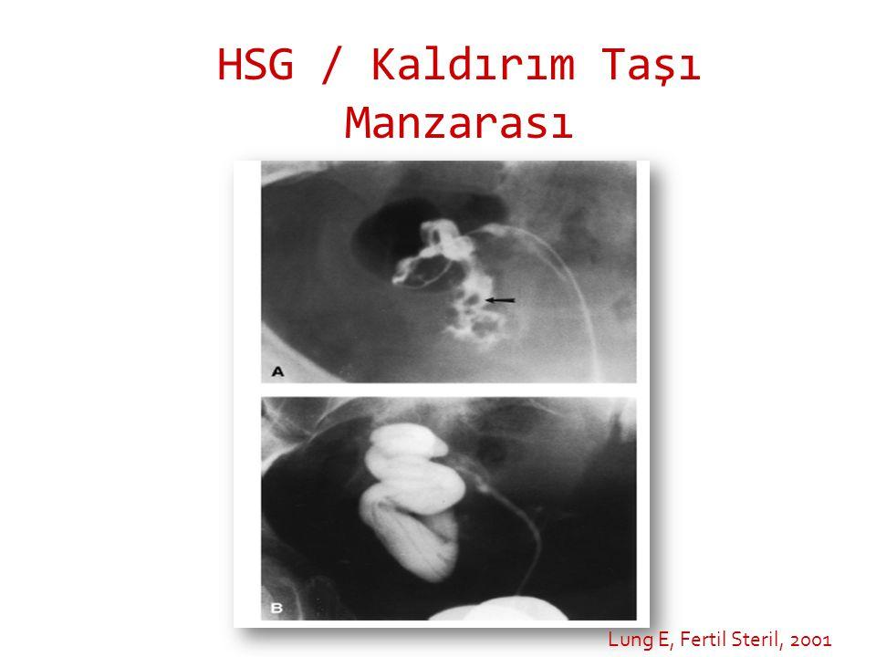 HSG / Kaldırım Taşı Manzarası Lung E, Fertil Steril, 2001