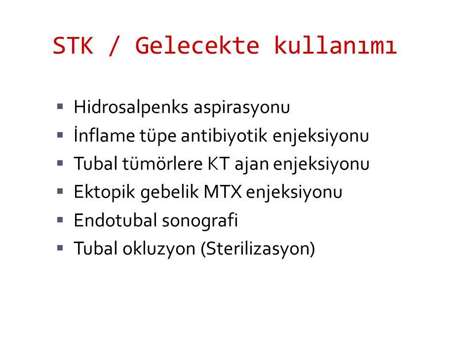 STK / Gelecekte kullanımı  Hidrosalpenks aspirasyonu  İnflame tüpe antibiyotik enjeksiyonu  Tubal tümörlere KT ajan enjeksiyonu  Ektopik gebelik M
