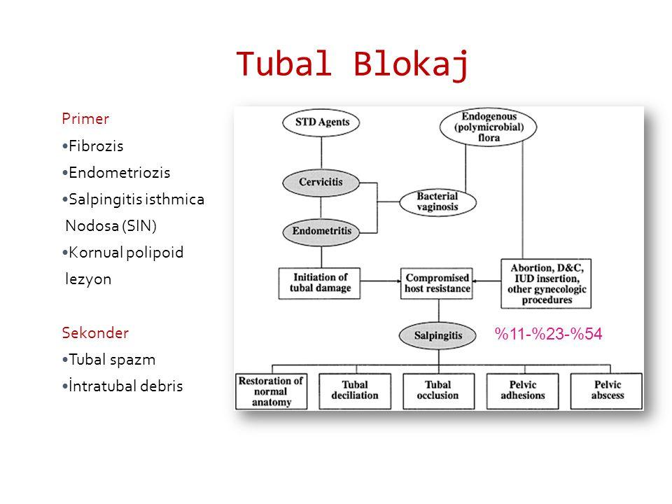 Tubal Blokaj Primer Fibrozis Endometriozis Salpingitis isthmica Nodosa (SIN) Kornual polipoid lezyon Sekonder Tubal spazm İntratubal debris %11-%23-%54