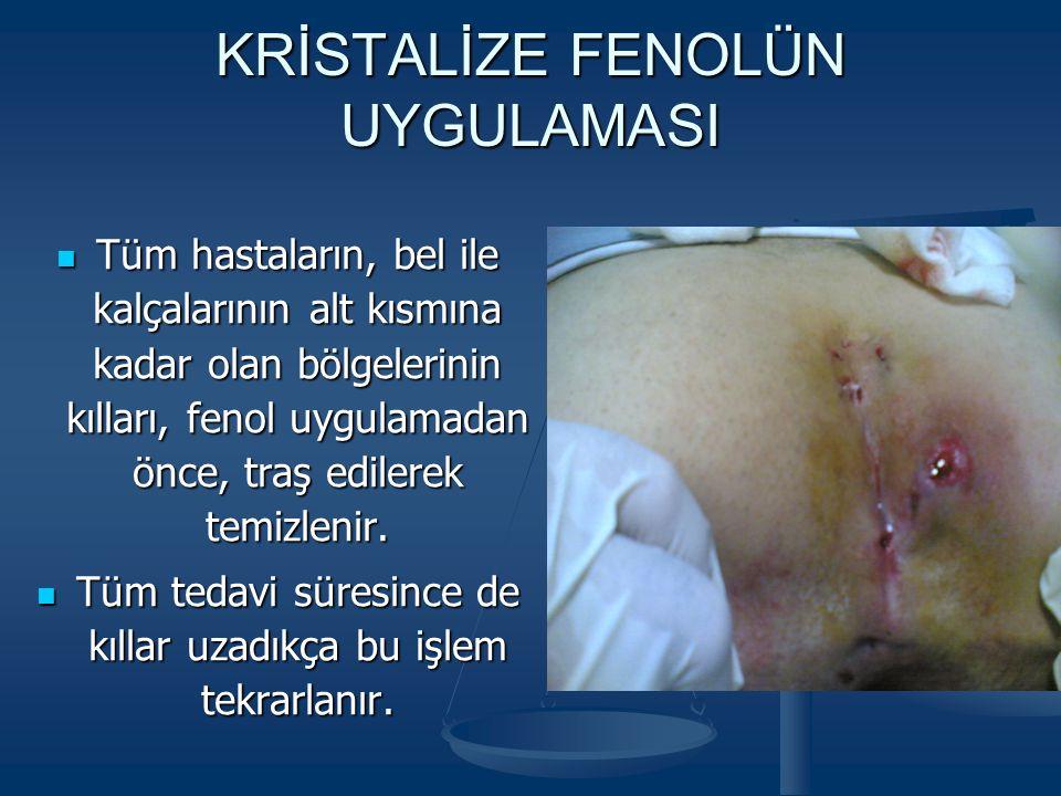 Cerrahi sonrası Kristalize fenol sonrası