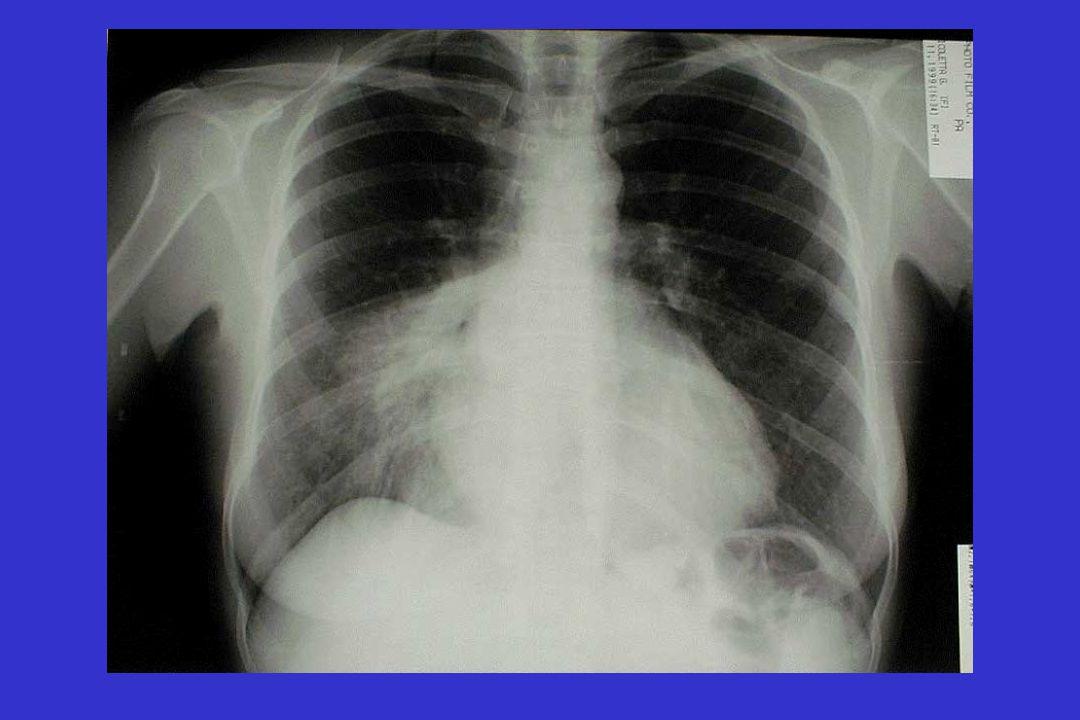 Pneumonia Severity Index (PSI)