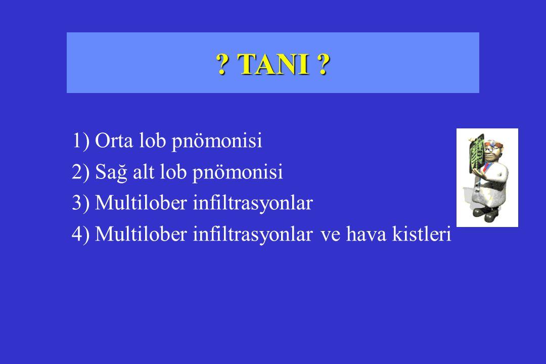 ? TANI ? 1) Orta lob pnömonisi 2) Sağ alt lob pnömonisi 3) Multilober infiltrasyonlar 4) Multilober infiltrasyonlar ve hava kistleri