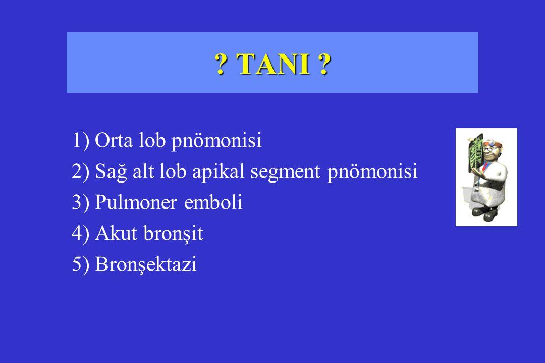 ? TANI ? 1) Orta lob pnömonisi 2) Sağ alt lob apikal segment pnömonisi 3) Pulmoner emboli 4) Akut bronşit 5) Bronşektazi