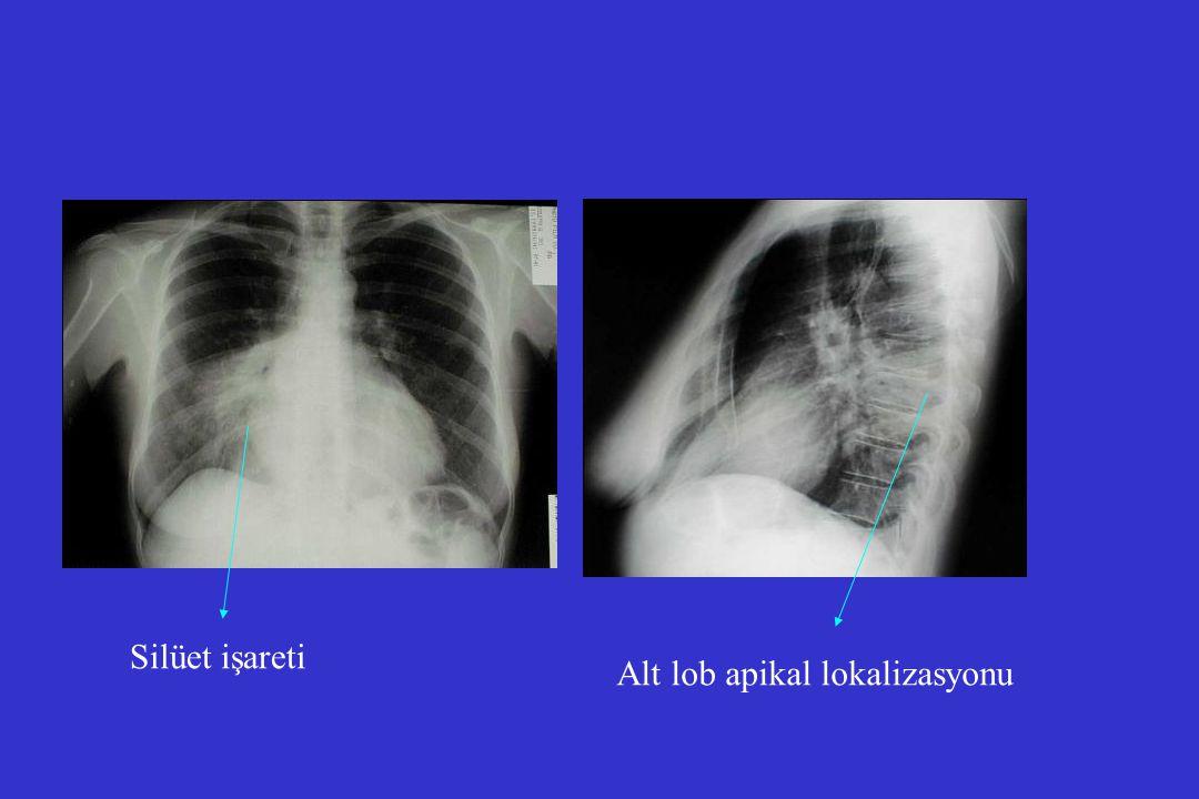 Kalite endikatörleri l 4 saat içinde AB başlanması l Kan kültürleri l Pnömokok, influenza aşıları l Sigara bıraktırmak l Oksijenasyonun değerlendirilmesi l Ampiyem drenajı l Parenteral AB tedavisinden oral AB tedavisine geçiş