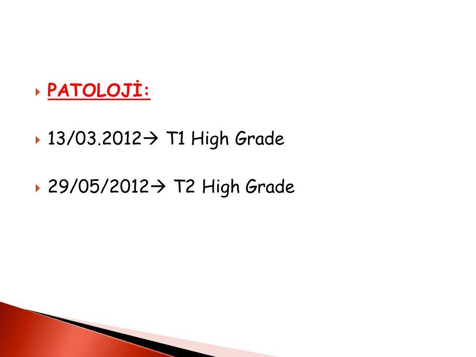  PATOLOJİ:  13/03.2012  T1 High Grade  29/05/2012  T2 High Grade