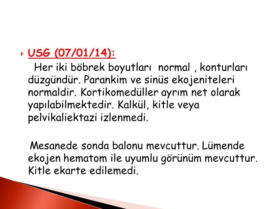  USG (07/01/14): Her iki böbrek boyutları normal, konturları düzgündür.