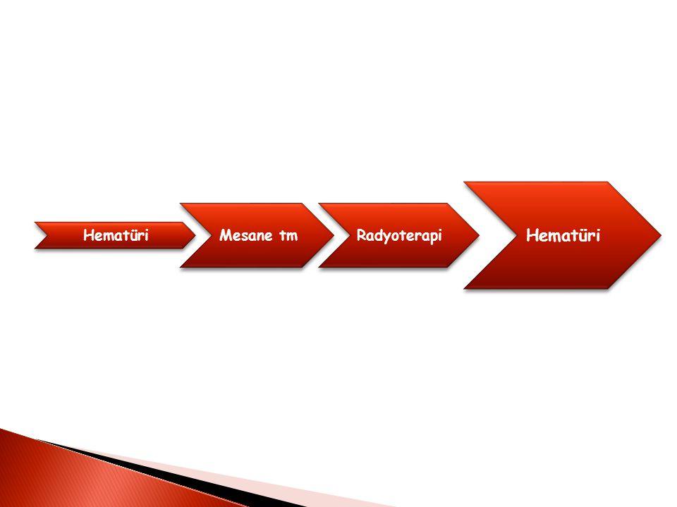 Hematüri Mesane tmRadyoterapi Hematüri