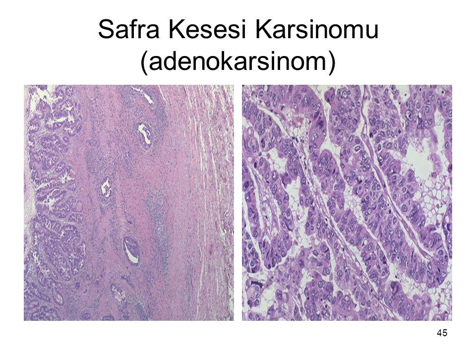 45 Safra Kesesi Karsinomu (adenokarsinom)