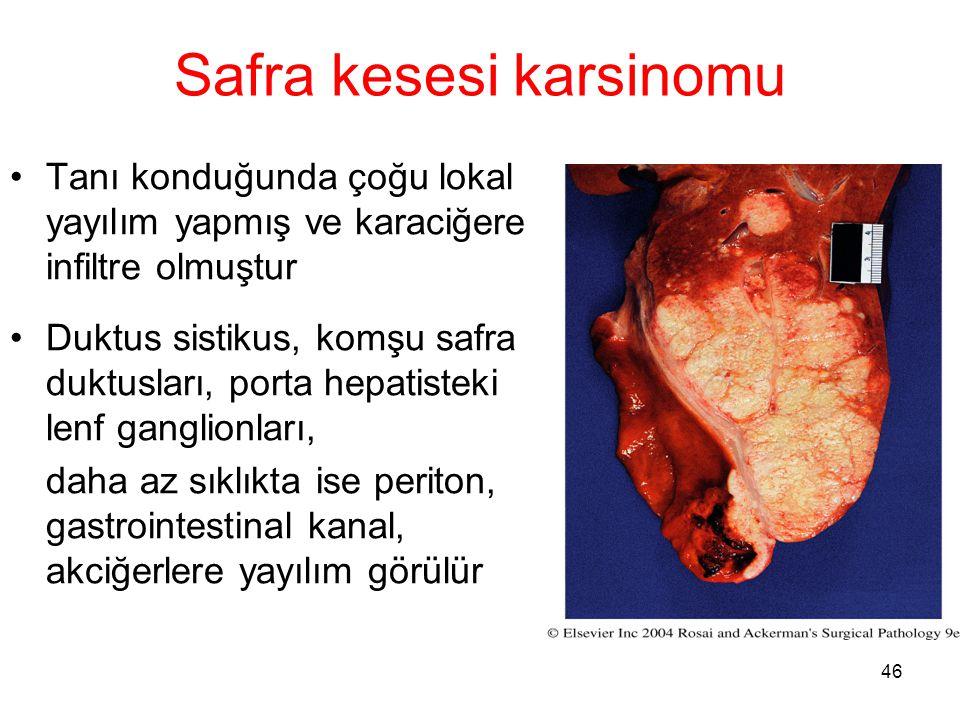 46 Safra kesesi karsinomu Tanı konduğunda çoğu lokal yayılım yapmış ve karaciğere infiltre olmuştur Duktus sistikus, komşu safra duktusları, porta hep
