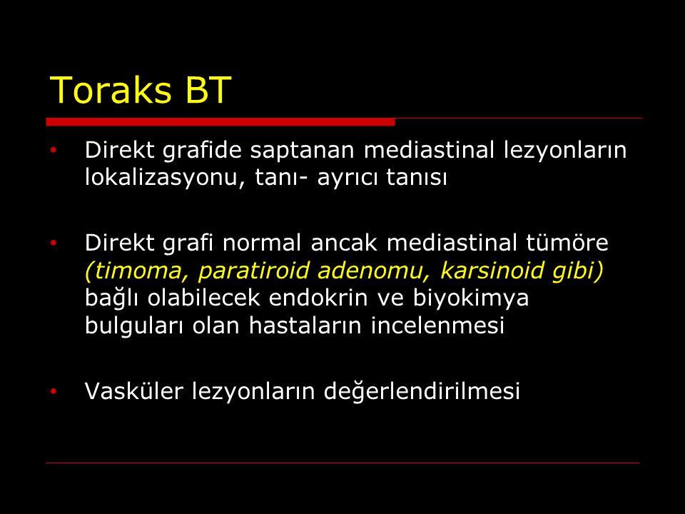 Toraks BT Direkt grafide saptanan mediastinal lezyonların lokalizasyonu, tanı- ayrıcı tanısı Direkt grafi normal ancak mediastinal tümöre (timoma, par