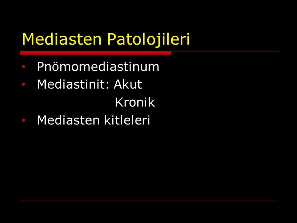 Mediasten Patolojileri Pnömomediastinum Mediastinit: Akut Kronik Mediasten kitleleri