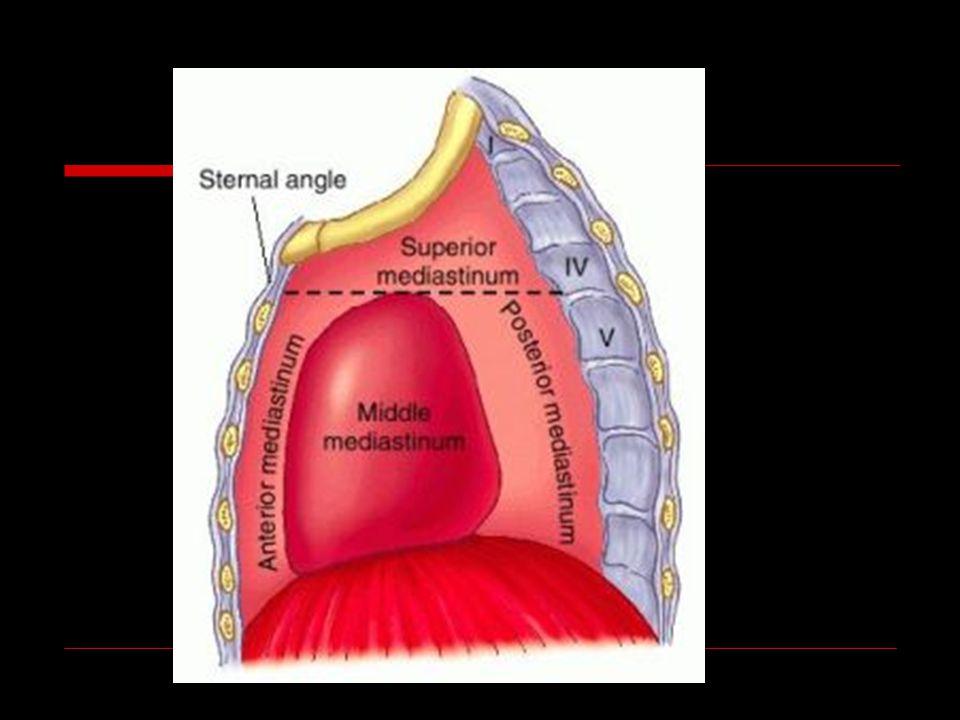 ÖN MEDİASTEN KİTLELERİ 4 T: Tiroid- paratiroid Timoma Teratom Terrible lenfoma