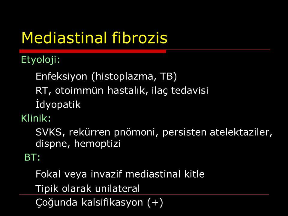 Mediastinal fibrozis Etyoloji: Enfeksiyon (histoplazma, TB) RT, otoimmün hastalık, ilaç tedavisi İdyopatik Klinik: SVKS, rekürren pnömoni, persisten a