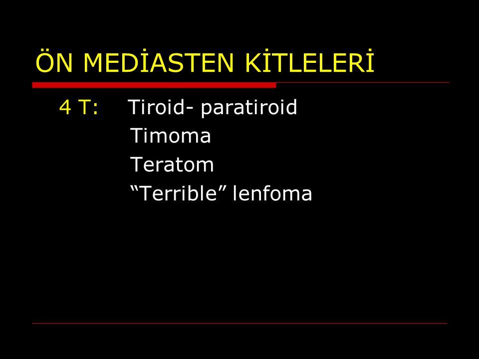 """ÖN MEDİASTEN KİTLELERİ 4 T: Tiroid- paratiroid Timoma Teratom """"Terrible"""" lenfoma"""