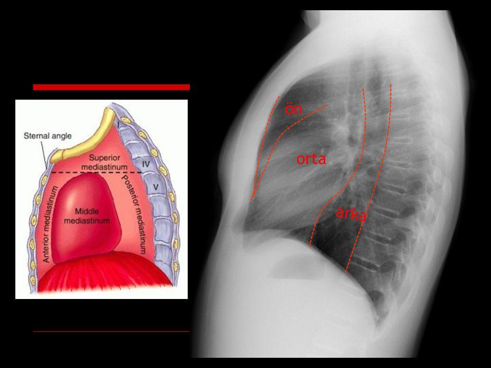 Pnömomediastinum Spontan Alveol rüptürü: Valsalva manevrası, astma krizi, aspirasyon pnömonisi, kızamık, öksürük, kusma, egzersiz, doğum, kokain Tümör erozyonu (trakea- özefagus) Pnömoperiton Travmatik Mekanik ventilasyon sonucu interstisyel amfizem Bronş- trakea rüptürü Özefagus rüptürü İyatrojenik: cerrahi, mediastinoskopi, bronskopi, endoskopi, entübasyon, pozitif başınçlı ventilasyon