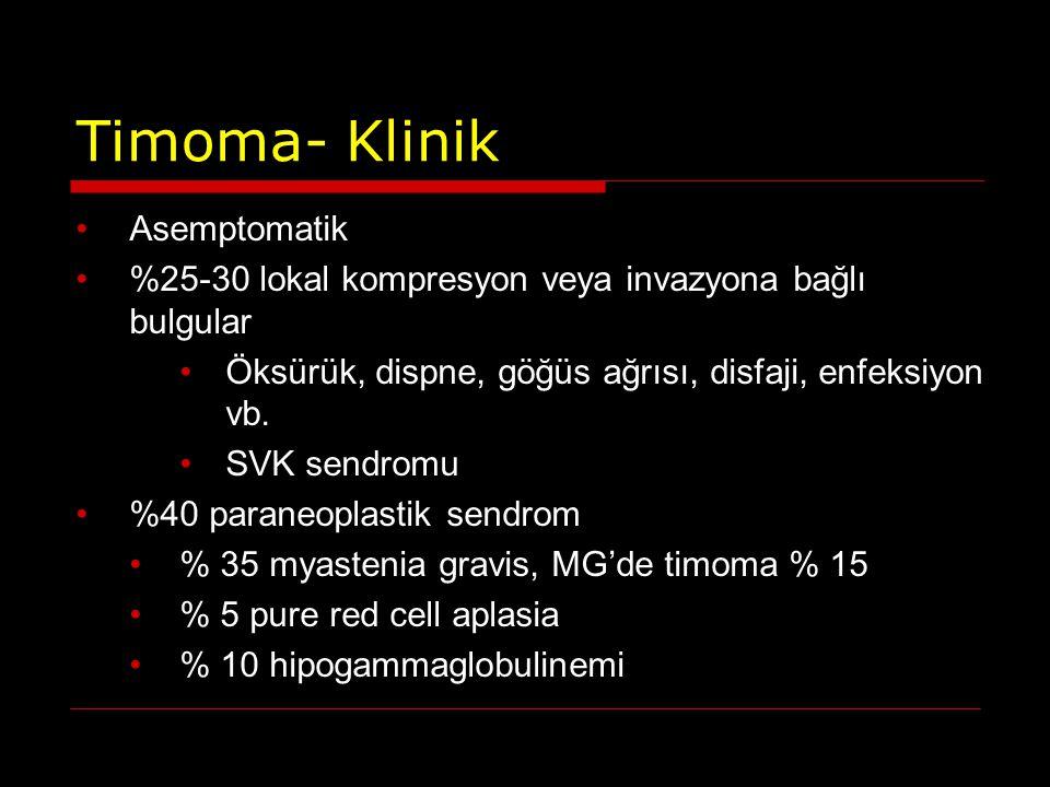 Timoma- Klinik Asemptomatik %25-30 lokal kompresyon veya invazyona bağlı bulgular Öksürük, dispne, göğüs ağrısı, disfaji, enfeksiyon vb. SVK sendromu