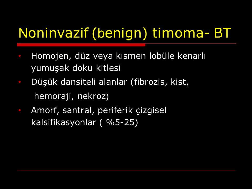 N oninvazif ( b enign) timoma- BT Homojen, düz veya kısmen lobüle kenarlı yumuşak doku kitlesi Düşük dansiteli alanlar (fibrozis, kist, hemoraji, nekr