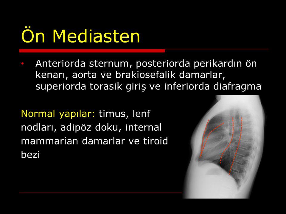Orta Mediasten Anteriorda perikardın ön kenarları, posteriorda perikardın arka kenarları ve trakeanın arka duvarı Normal yapılar: kalp veperikard, ana damarlar, trakea ve ana bronşlar, lenf nodları, frenik sinir, vagus ve sol rekürren laringeal sinir