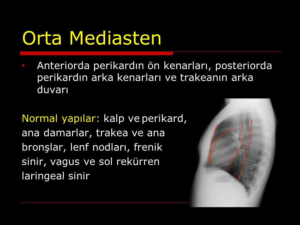 Orta Mediasten Anteriorda perikardın ön kenarları, posteriorda perikardın arka kenarları ve trakeanın arka duvarı Normal yapılar: kalp veperikard, ana