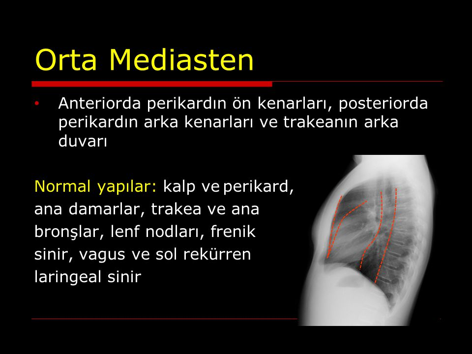 ARKA MEDİASTEN KİTLELERİ Sempatik sinir tümörleri Nöroblastom Ganglinöroblastom Ganglionörinom Paragangliom Sinir kılıfı tümörleri Schwannoma Nörofibrom Lateral meningosel Nöroenterik kist