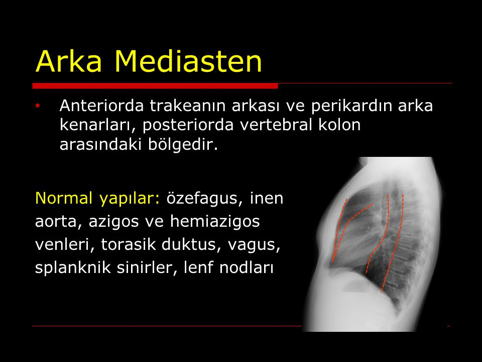 ARKA MEDİASTEN KİTLELERİ Özefagus lezyonları Tümörler: leimyom, karsinom Duplikasyon kisti Hiatal herni Lenfoma Metastaz Ekstramedüller hematopoez Paraspinal abse Paraspinal hematom