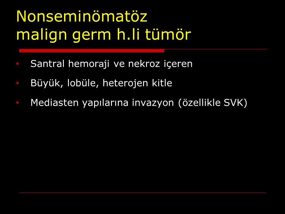 Nonseminömatöz malign germ h.li tümör Santral hemor a ji ve nekroz içeren Büyük, lobüle, heterojen kitle Mediasten yapılarına invazyon (özellikle SVK)