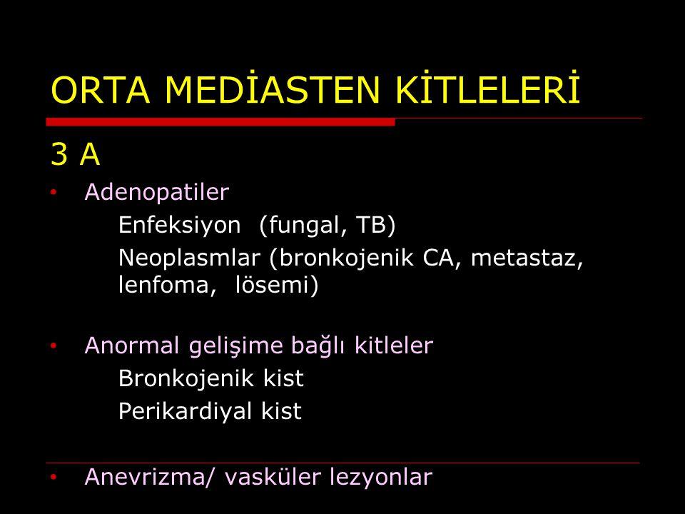 ORTA MEDİASTEN KİTLELERİ 3 A Adenopatiler Enfeksiyon (fungal, TB) Neoplasmlar (bronkojenik CA, metastaz, lenfoma, lösemi) Anormal gelişime bağlı kitle